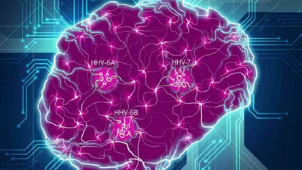 Las especies virales clave (HHV-6A, HHV-6B, HHV-7) interrumpen las conexiones neuronales.