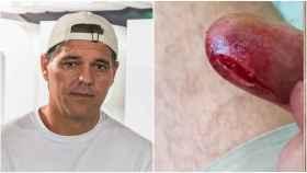 Frank Cuesta en un montaje de Jaleos junto a la herida de su dedo.