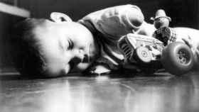 Un niño afectado por la talidomida.