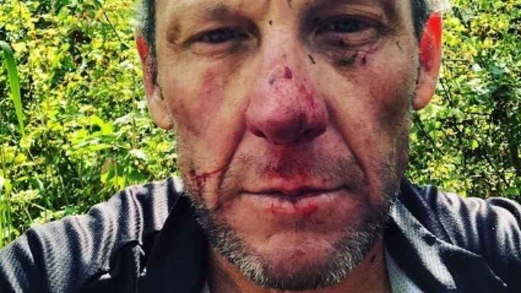 Lance Armstrong tras un accidente. Foto: Instagram (@lancearmstrong)