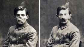 Anna Coleman Ladd hacía prótesis de cobre para los rostros