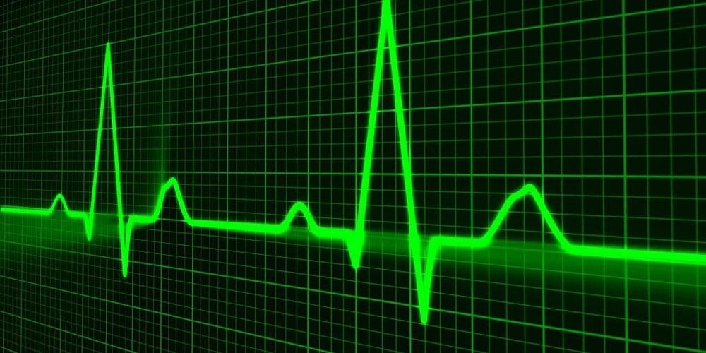 inteligencia artificial pulso medico