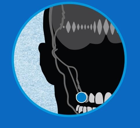 Micrófono dental