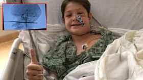 El valiente Xavier tras la operación, junto a una radiografía de cómo quedó su cráneo.