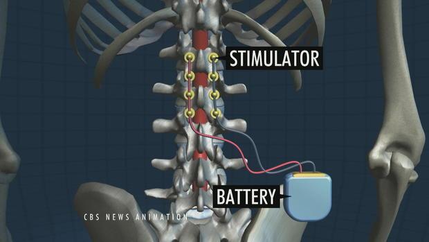 implantes electricos chips medula espinal paraplejicos