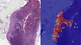 ganglios linfaticos regiones tumorales inteligencia artificial google cancer tumores
