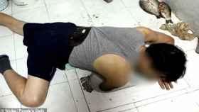 Los rescatistas tuvieron que romper por completo el WC para salvarle el brazo a este hombre