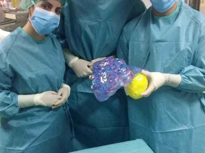 Los médicos con el modelo en resina del hígado.