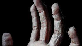 La piel seca puede indicar que tu dieta no es adecuada.