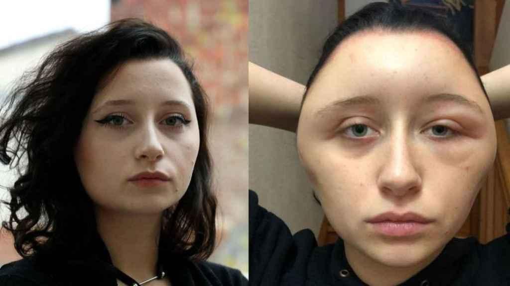 El antes y el después de la pobre Estelle