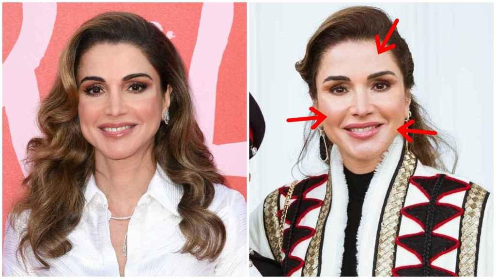 Rania de Jordania en una imagen de hace un año (izquierda) y en una imagen reciente (derecha).