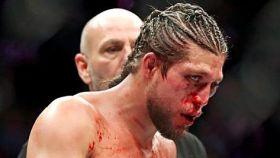 Brian Ortega, en UFC 231. Foto: Instagram (@briantcity)