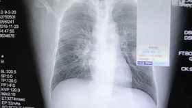 Radiografía del paciente.