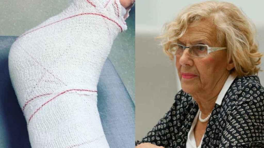 Manuela Carmena, atendida en el hospital de la Princesa por una lesión de tobillo