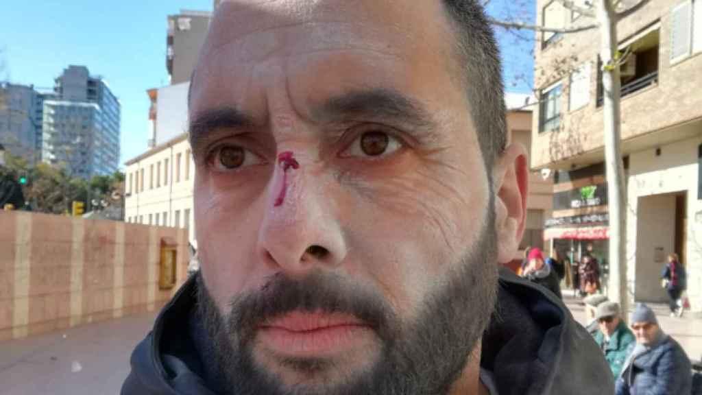 Dirigente de Vox agredido en Zaragoza.