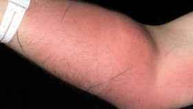 El brazo bien fortalecido del paciente y el absceso provocado en el lugar de las inyecciones.