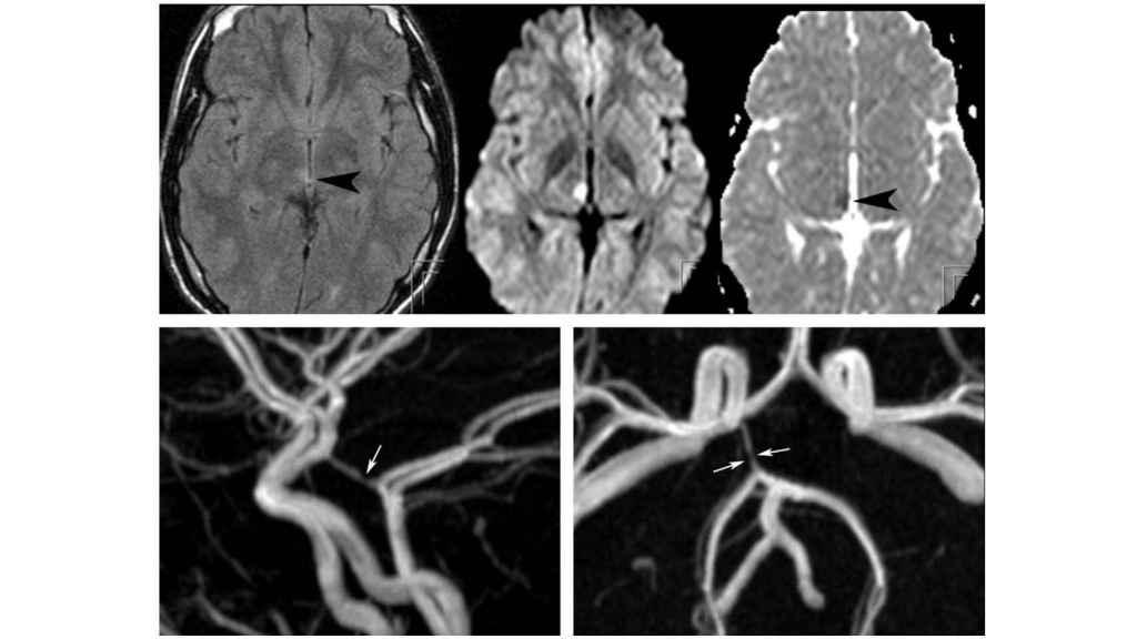Déficit hemisensorial, posible causa de parálisis cerebral, provocado por el uso de fármacos. Ajnr.org