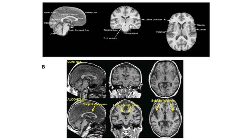 Daños en las regiones del cerebro provocados por el alcoholismo. Niaaa.nih.gov