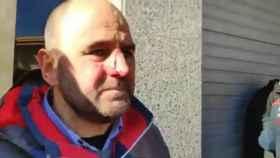 """Sergio, concejal de C's agredido: """"Me han roto la nariz en mi tierra por defender mis ideas pacíficamente"""""""