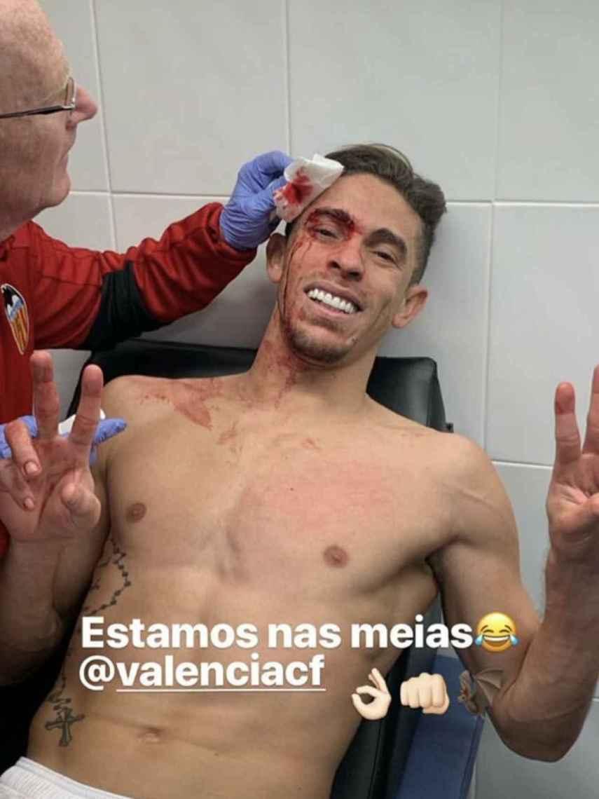 Gabriel Paulista tratándose tras el duro golpe. Foto: Instagram. (@goncaloguedes15)
