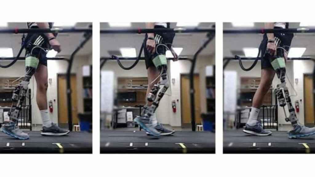 Prótesis robótica
