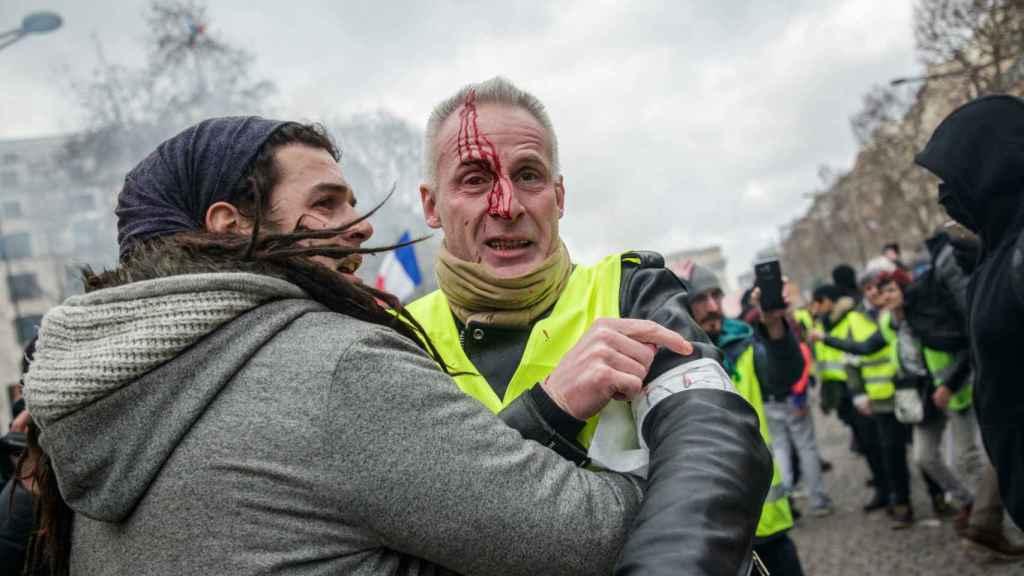 Un herido se enfrenta a la Policía en las calles de París durante las protestas de los 'chalecos amarillos'.