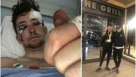Un ciclista británico cuenta como una furgoneta en España le tiró a un barranco