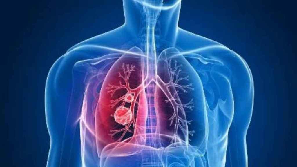 Representación de un cáncer de pulmón