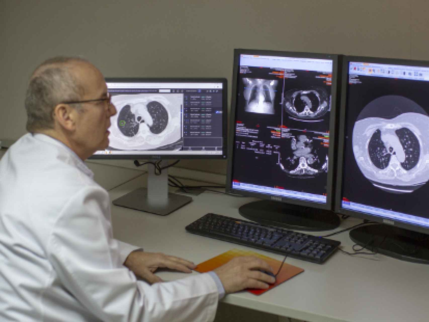 Inteligencia Artificial para detectar el cáncer de pulmón
