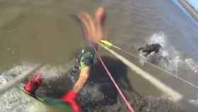 Un perro ataca a un kitesurfista y le desgarra el brazo