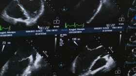 ultrasonido ecografia feto
