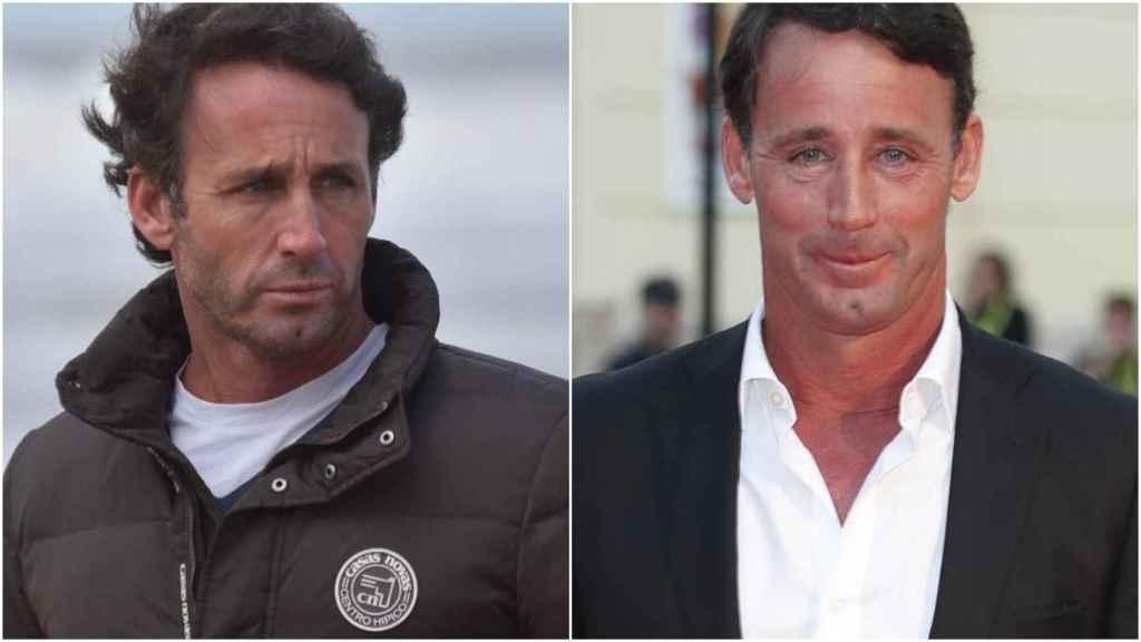 Álvaro Muñoz Escassi antes y después de sus tratamientos de belleza.
