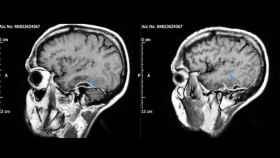 Abcesos de pus en el cerebro del paciente. (Charlton et al, BMJ Case Reports, 2019)