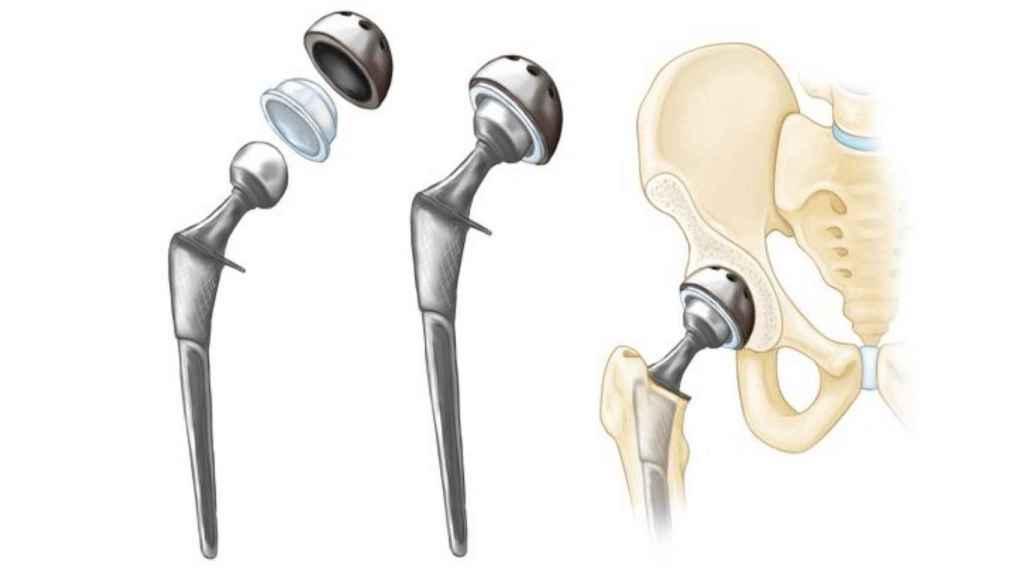 Diagrama de montaje de la prótesis de cadera.