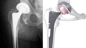 Radiografía de una prótesis en una cadera y un nuevo modelo de alta tecnología / Wikimedia commons.