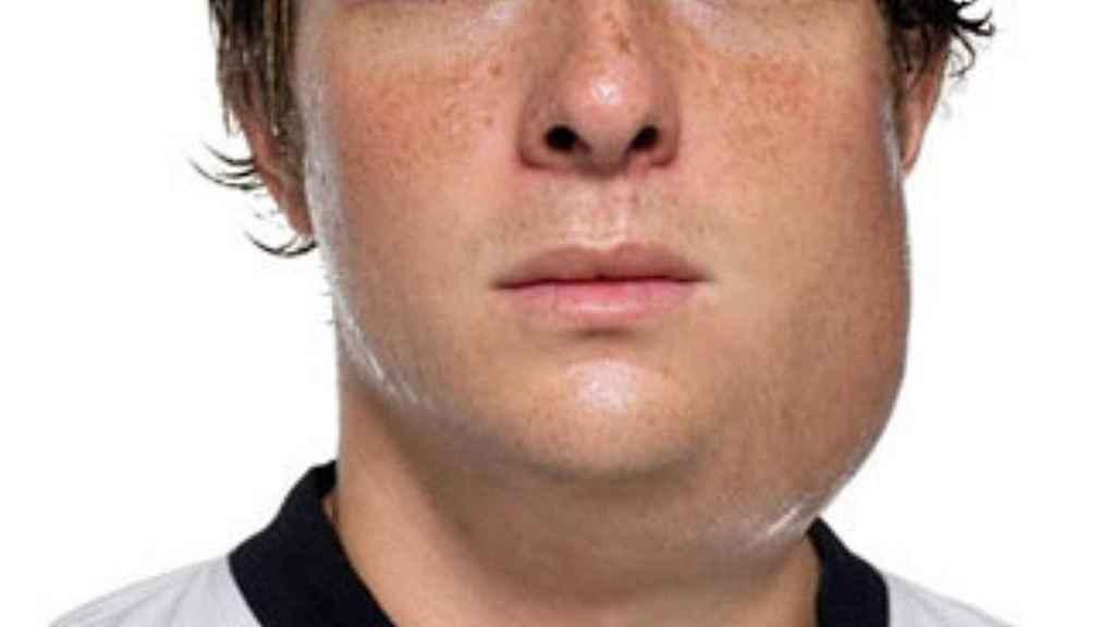 La característica hinchazón de las glándulas salivales de los jóvenes afectados por paperas. cdc.gov.