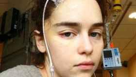 'Juego de Tronos': Las chocantes imágenes de Emilia Clarke tras ser operada de un aneurisma.