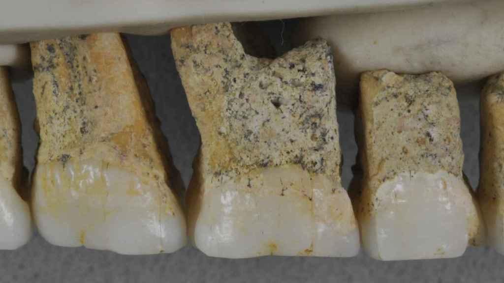 Dentadura superior derecha de Homo luzonensis