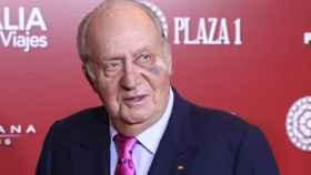 Juan Carlos I mostró unos claros hematomas el pasado 22 de marzo debido a la operación.