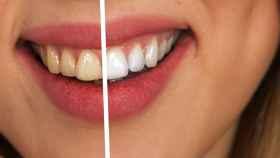 Unos dientes perfectos, una bonita sonrisa