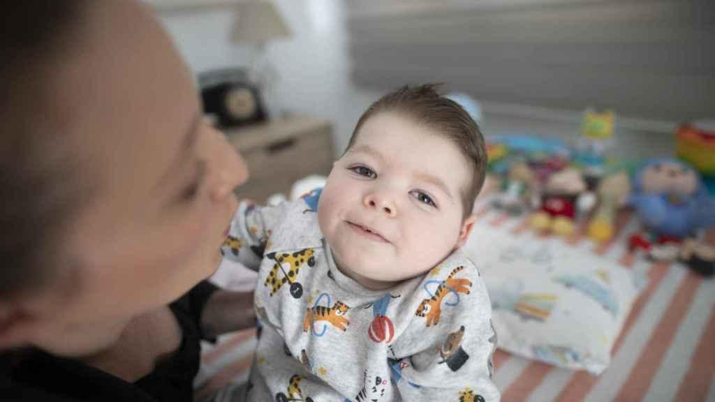 Hugo padece una enfermedad genética casi desconocida para la medicina española.
