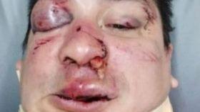 Sebastian Acosta, agredido por los barrabravas