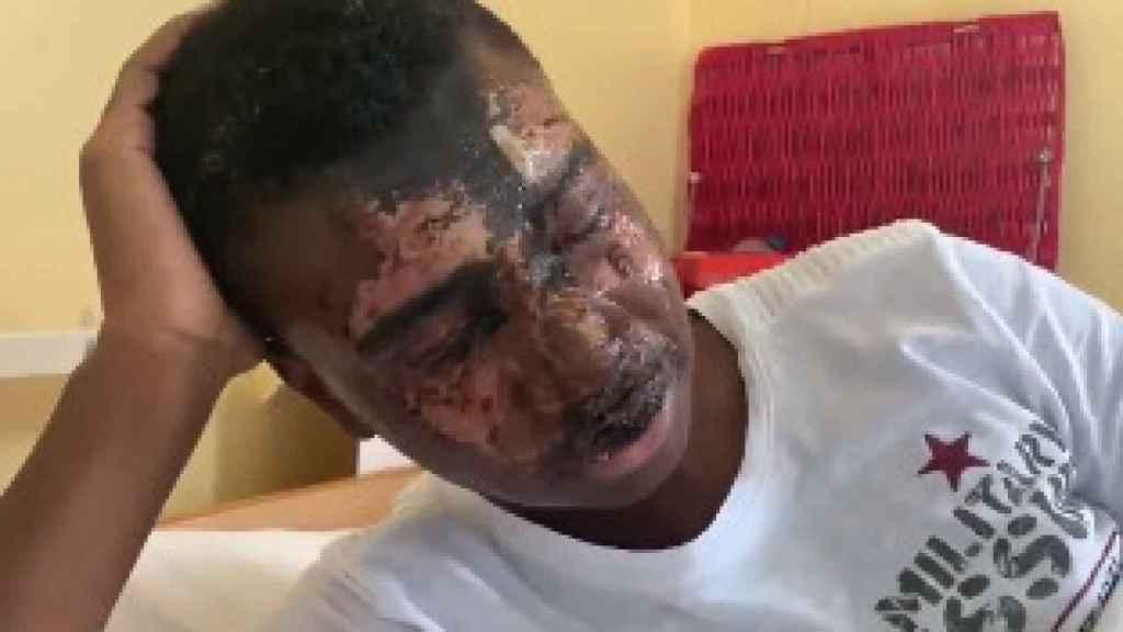 Tega Agberhiere tras ser atacado con ácido