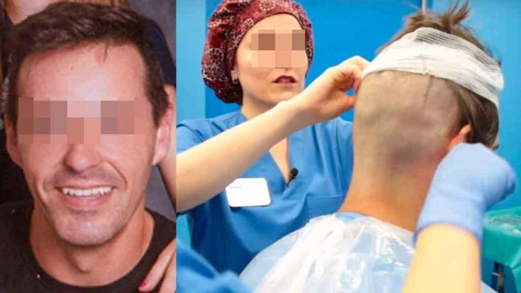 Rafael fue a ponerse implantes de pelo pero sufrió un infarto mortal durante la anestesia.