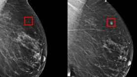 Resultados de una mamografía.