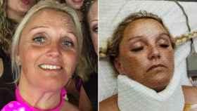 Bonnie antes y después del accidente que sufrió en Magaluf en 2017.