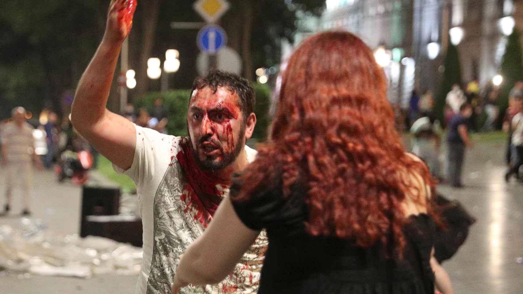 Lo disturbios en Georgia, en imágenes