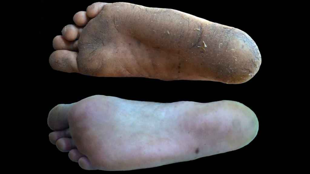 Los callos tienen un efecto beneficioso en los pies de los que caminan descalzos, ya que no comprometen la sensibilidad ni la marcha, mientras que el calzado puede reducir la capacidad de percibir estímulos. EFE/Nature.