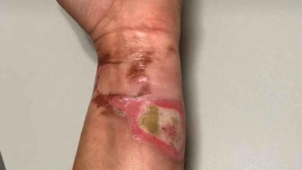 Imagen de cómo le quedó el brazo a Mapi cuando le abrasó la crema que estaba preparando.