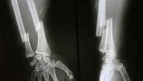 Una brazo con una fractura de radio y cúbito.